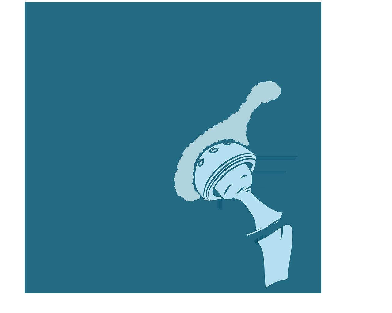 endoproteza biodra jak wyglada