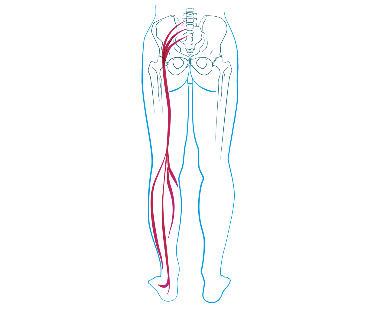 przyczyny objawy leczenie rwy kulszowej