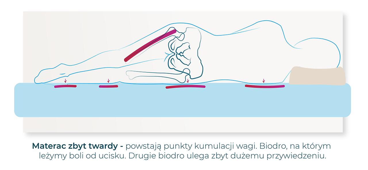 zbyt twardy materac jest niedopowiedni po endoprotezie biodra