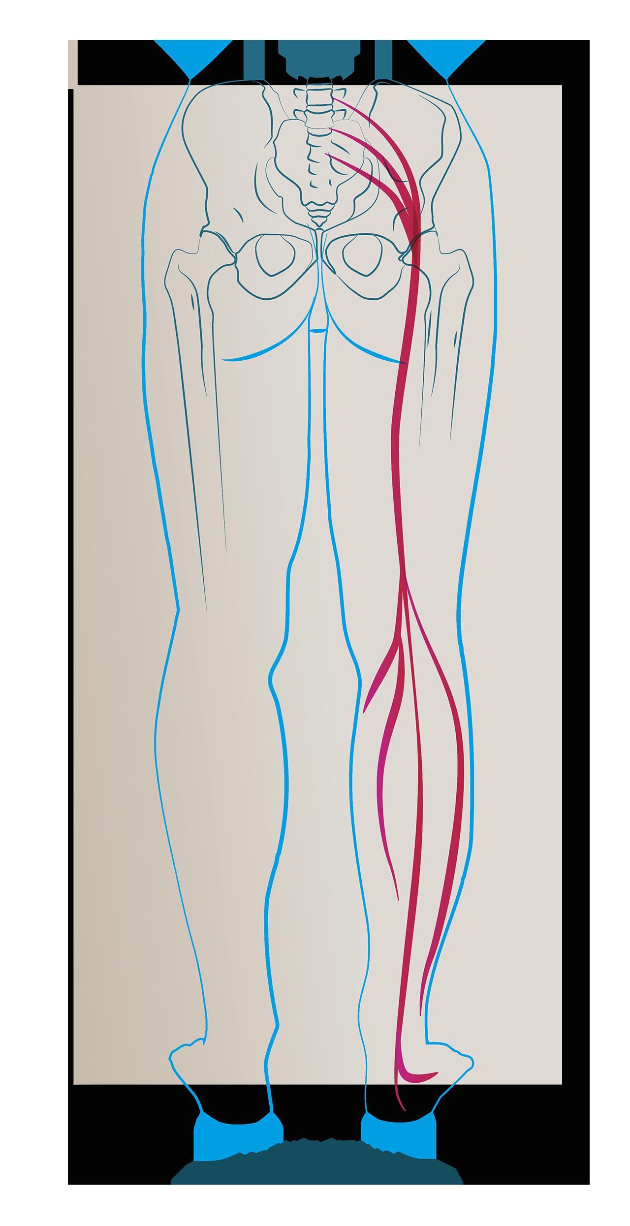 rwa kulszowa nerw kulszowy objawy