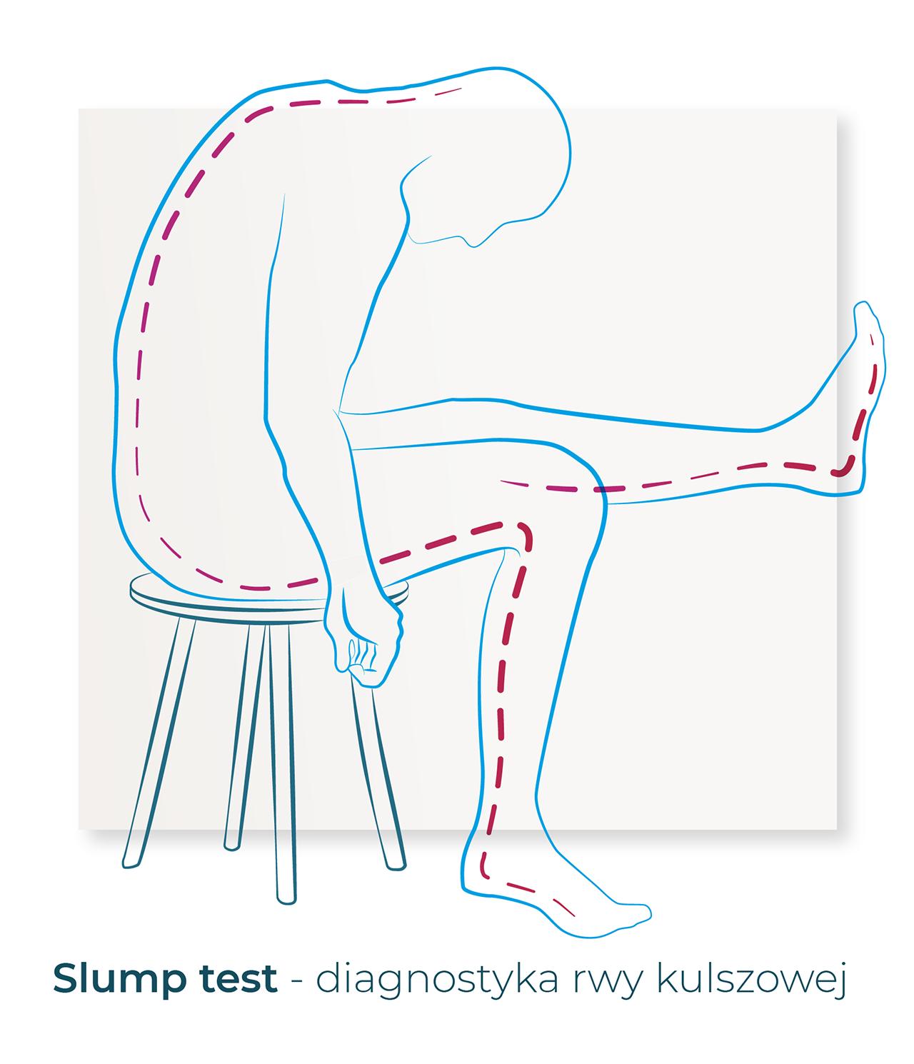 slump test diagnostyka rwy kulszowej