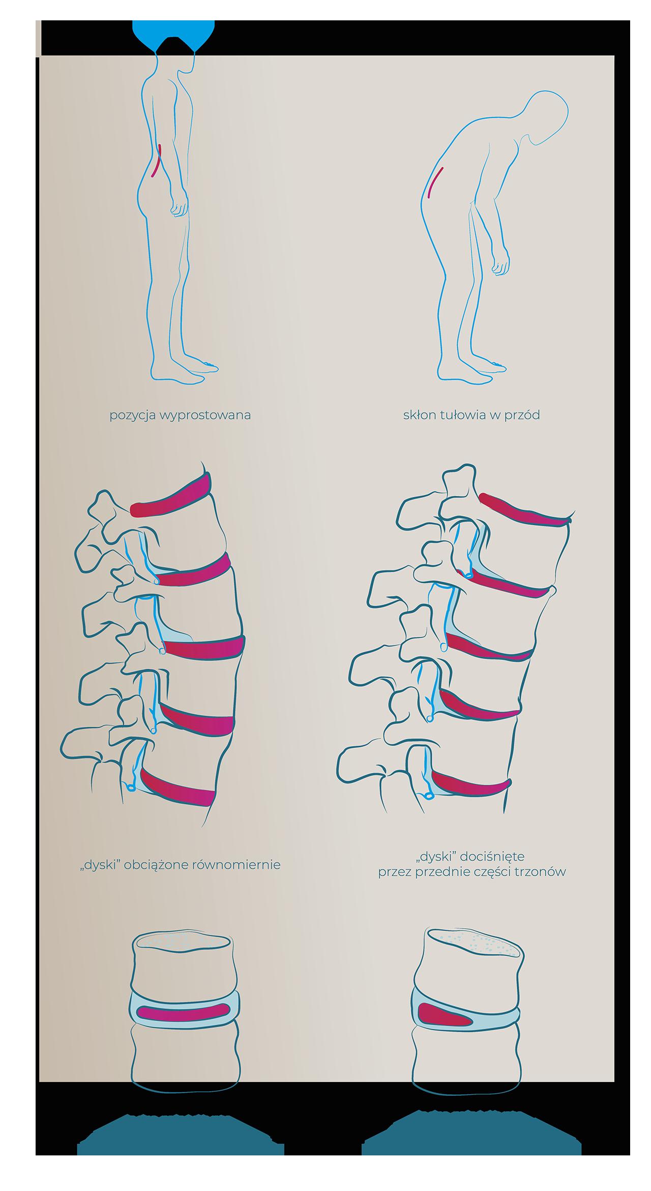 leczenie dyskopatii