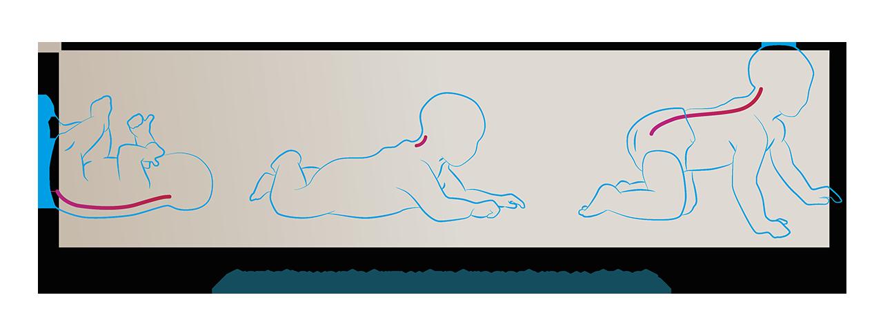 ksztaltowanie krzywizn kregoslupa u dzieci