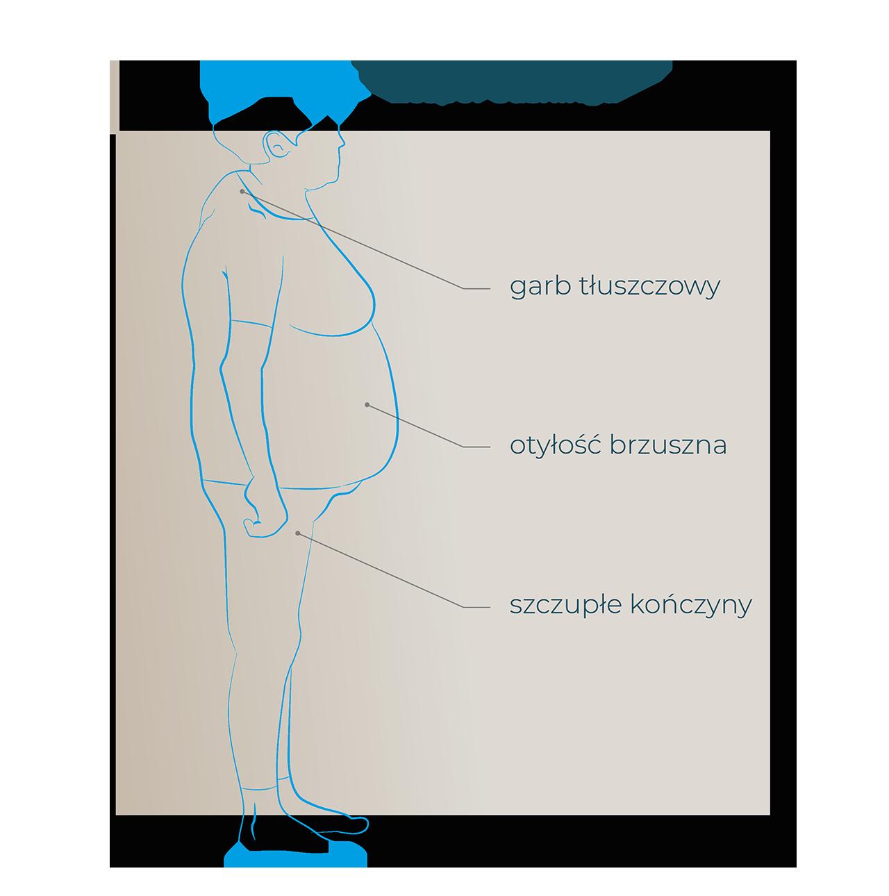 zespół cushinga - garb tluszczowy hormony